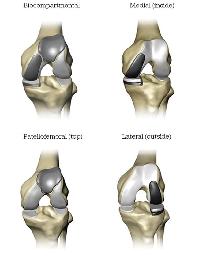 Minimally Invasive Hip Surgery Overland Park | Sports